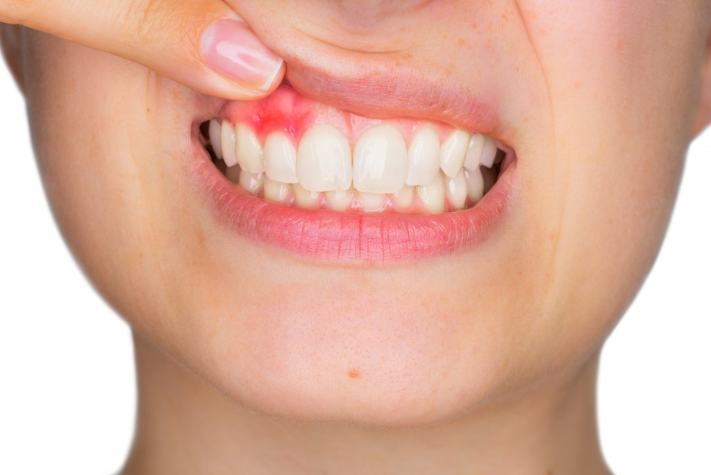 Closeup photo of woman smiling with teeth and damaged gums showing