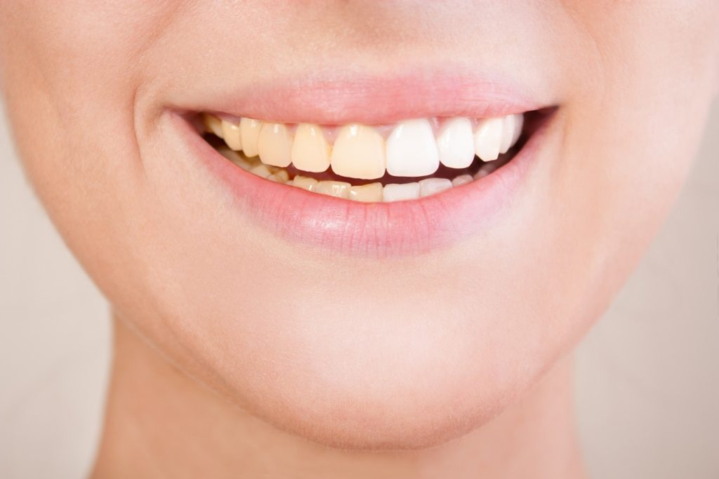 whiter teeth before after