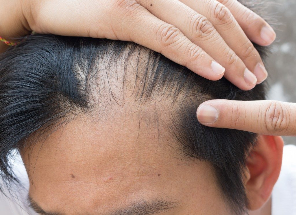 man showing signs of hair loss