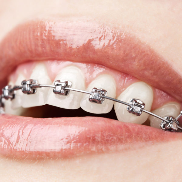 Doing Sports with Braces: Essential Advice for Athletes